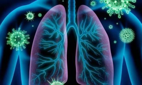 Casos de síndrome respiratória aguda grave devem crescer no país